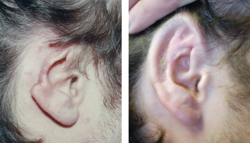 ear-surgery-otoplasty-in-toronto