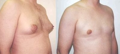 breast-augmentation-male-in-toronto